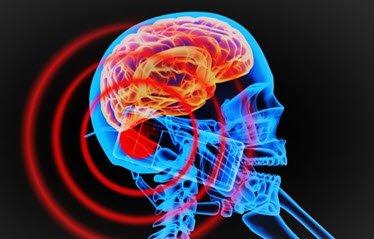 Bức xạ điện từ gây ung thư não